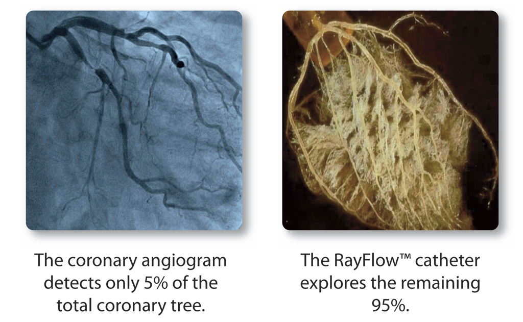 rayflow3